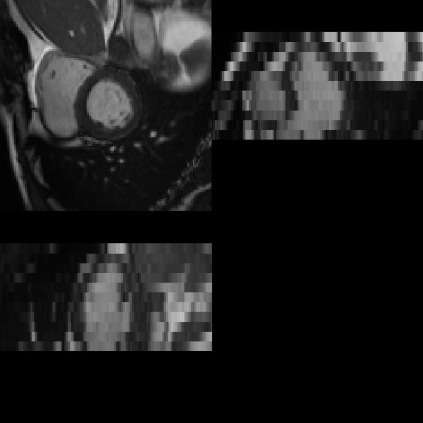 A cardiac MR image at ED